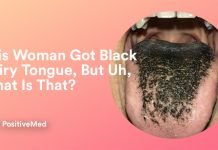 What to Do About Black Hairy Tongue, What Is That?
