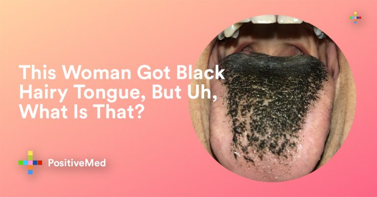 What to Do About Black Hairy Tongue. What is that?