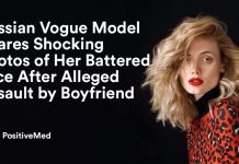 Russian Vogue Model Shares Shocking Photos of Her Bottered Face After Alleged Assault By Boyfriend