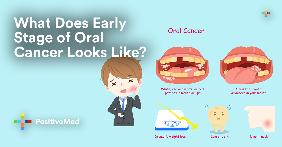 What Do Early Stages of Oral Cancer Look Like? - PositiveMedEarly Oral Cancer On Tongue Pictures