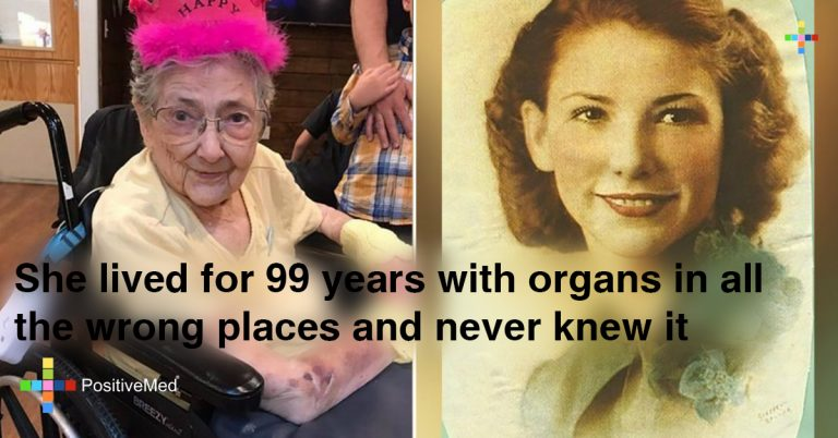 She Lived for 99 Years with Organs in all the Wrong Places and Never Knew it