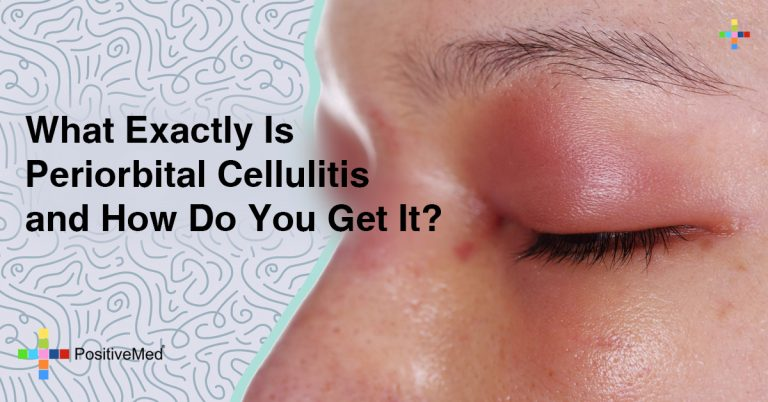 What Exactly Is Periorbital Cellulitis—and How Do You Get It?