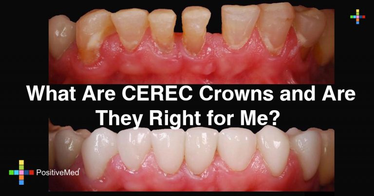 What Are CEREC Crowns and Are They Right for Me?