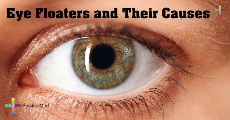 Eye Floaters and Their Causes