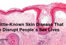 A-Little-Known-Skin-Disease-That-Can-Disrupt-People's-Sex-Lives