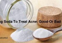 Baking Soda To Treat Acne: Good Or Bad Idea?
