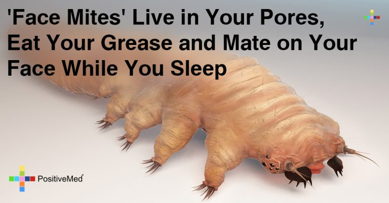 """Face Mites"" Live Inside Your Pores, Eat Grease and Mate On Your Face While You Sleep"
