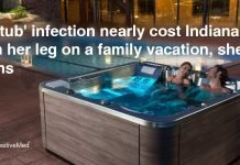 'Hot tub' Infection Nearly Cost a Woman her Leg on a Family Vacation