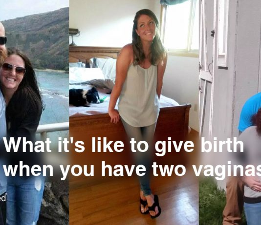 What it's like to give birth when you have two vaginas