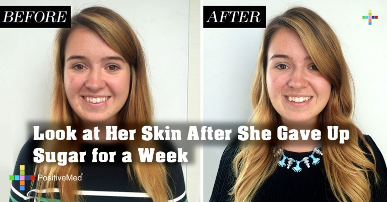Look at Her Skin After She Gave Up Sugar for a Week