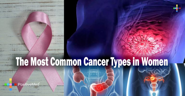 The Most Common Cancer Types in Women