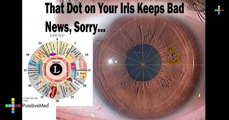 That Dot on Your Iris Keeps Bad News, Sorry…