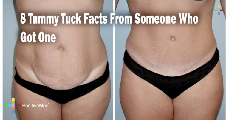 8 Tummy Tuck Facts From Someone Who Got One