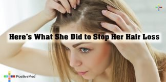 Here's What She Did to Stop Her Hair Loss