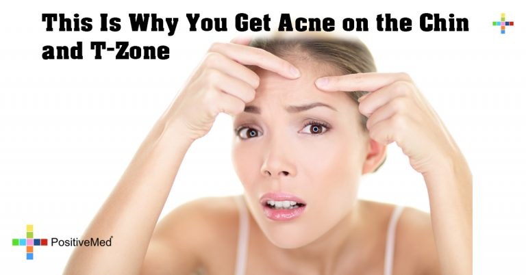 This Is Why You Get Acne on the Chin and T-Zone