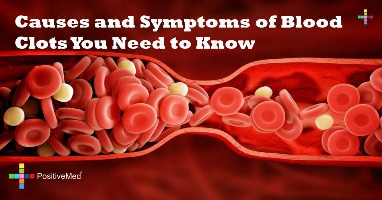 Causes and Symptoms of Blood Clots You Need to Know