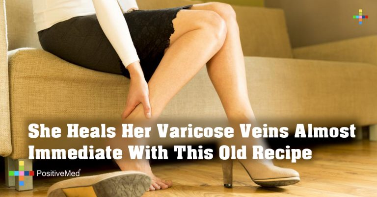 She Heals Her Varicose Veins Almost Immediate With This Old Recipe