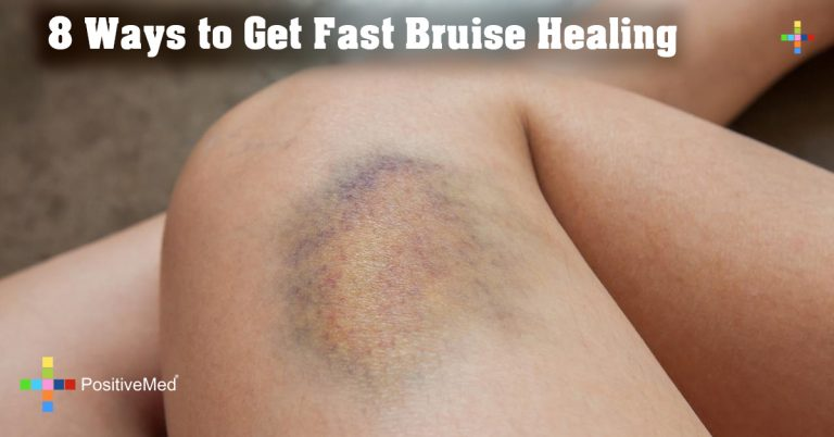 8 Ways to Get Fast Bruise Healing