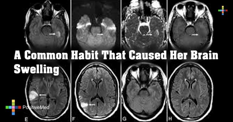 A Common Habit That Caused Her Brain Swelling