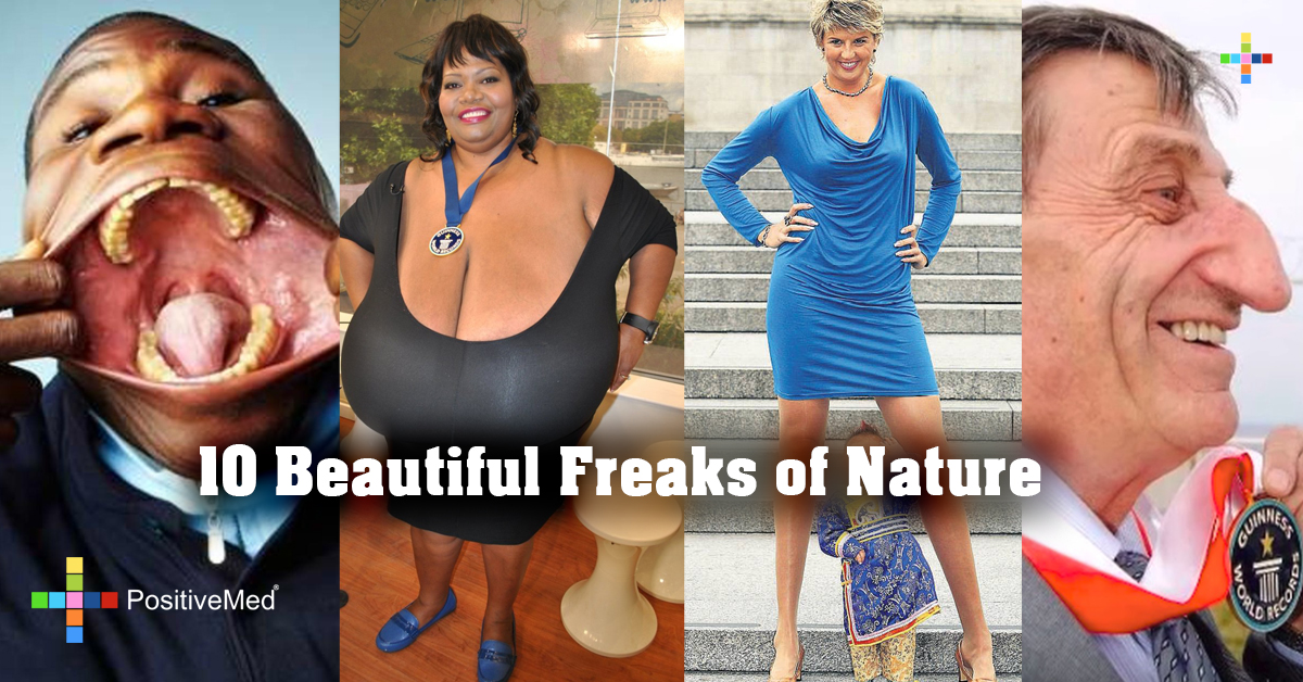 10 Beautiful Freaks of Nature