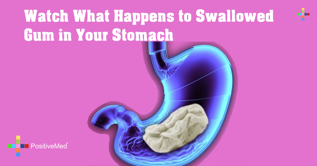 Watch What Happens to Swallowed Gum in Your Stomach
