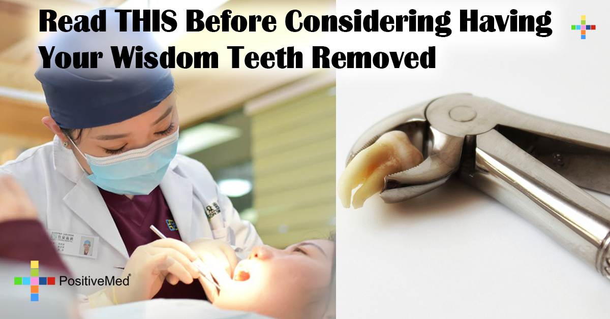 Read THIS Before Considering Having Your Wisdom Teeth Removed