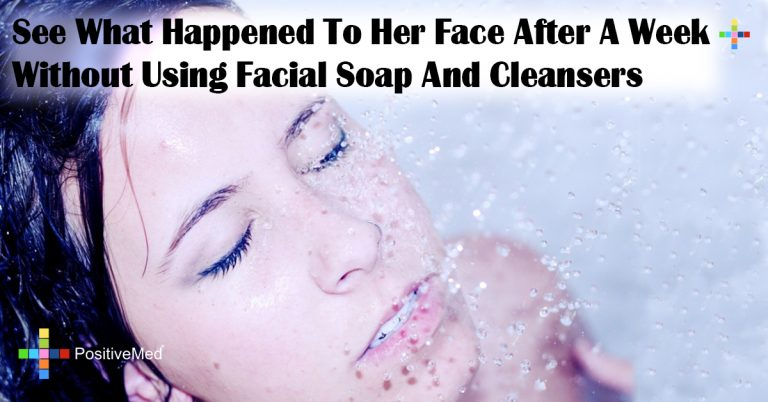See What Happened To Her Face After A Week Without Using Facial Soap And Cleansers