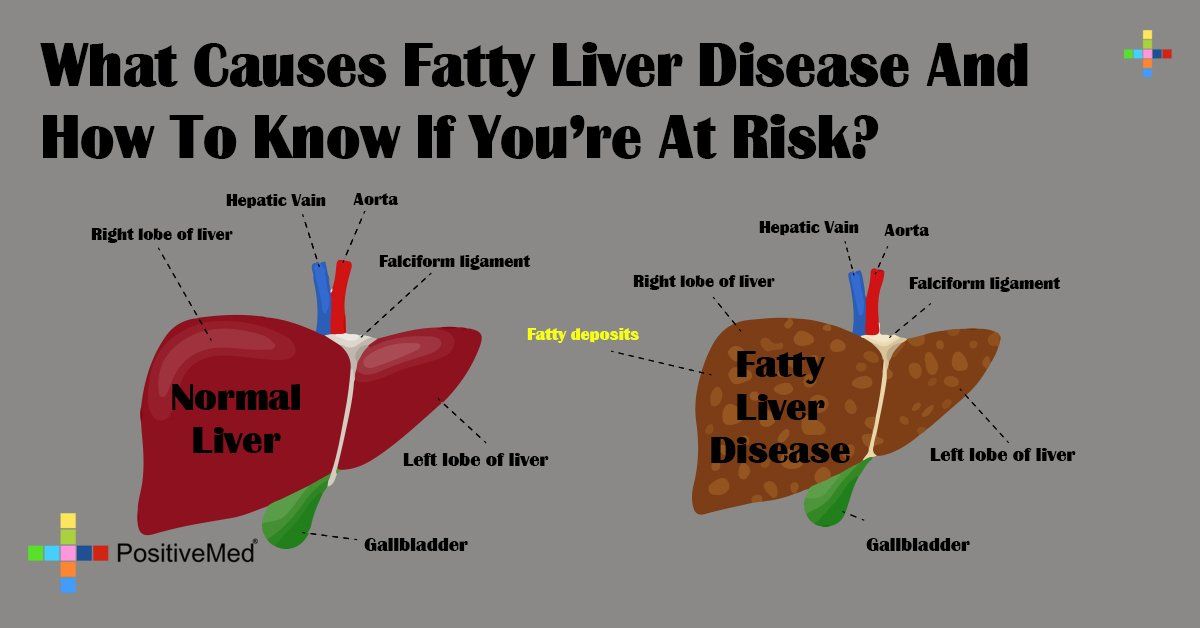 What Causes Fatty Liver Disease And How To Know If You're At Risk?