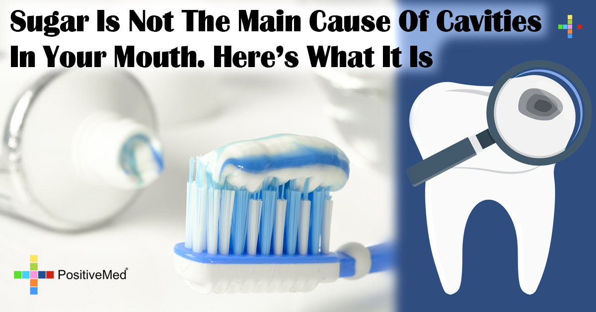 Sugar Is Not The Main Cause Of Cavities In Your Mouth. Here's What It Is