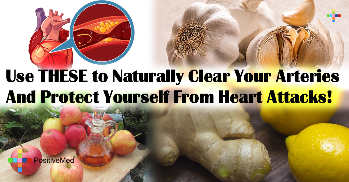 Use THESE to Naturally Clear Your Arteries And Protect Yourself From Heart Attacks!