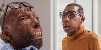 This Father Became the First Black Man to Get a Face Transplant