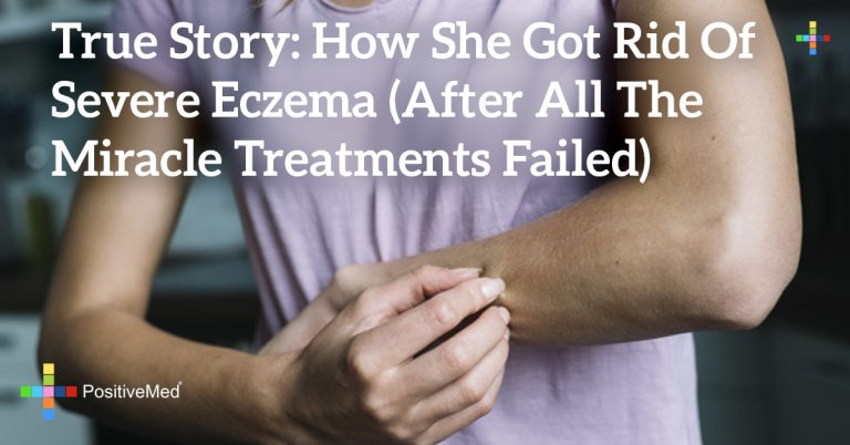 True Story: How She Got Rid of Severe Eczema (After All the Miracle Treatments Failed)