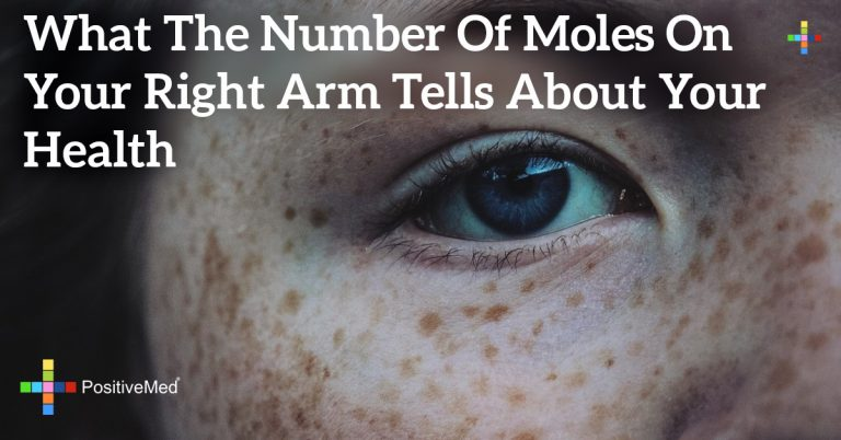 What the Number of Moles on your Right Arm Tells About your Health