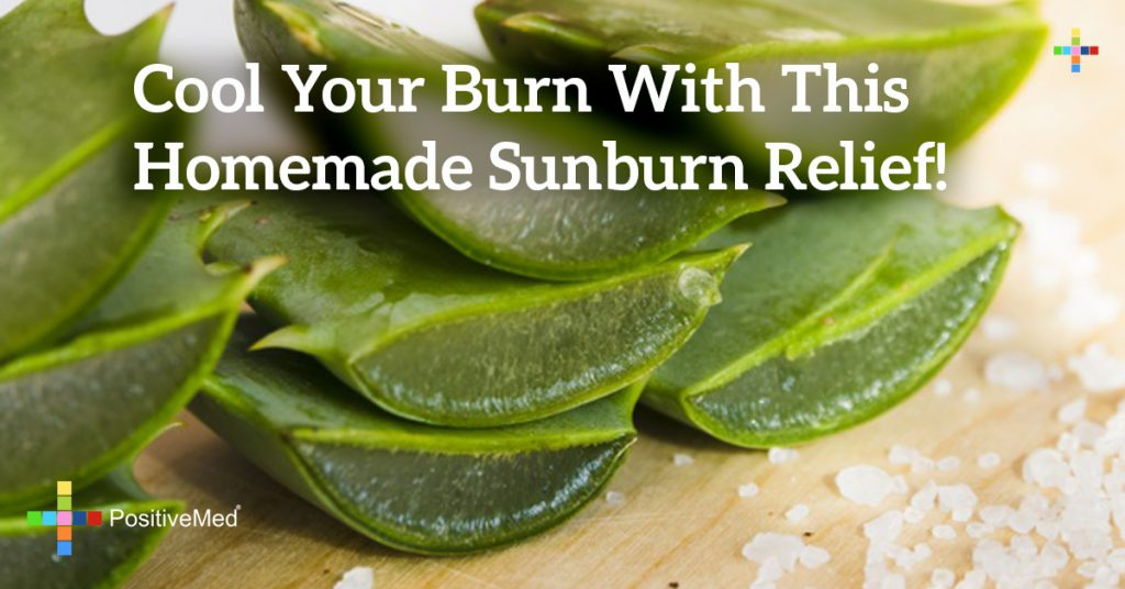 Cool Your Burn With This Homemade Sunburn Relief!