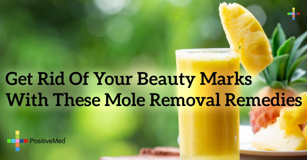 Get Rid of Your Beauty Marks With These Mole Removal Remedies
