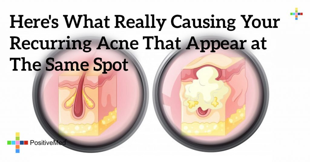Here's What Really Causing Your Recurring Acne That Appear at The Same Spot