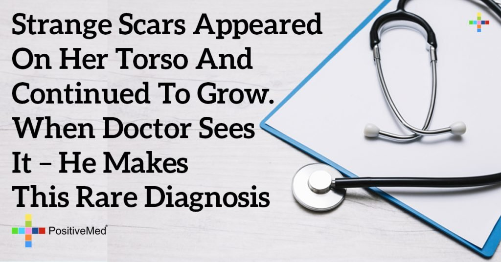 Strange Scars Appeared on Her Torso and Continued to Grow. When Doctor Sees It – He Makes This Rare Diagnosis
