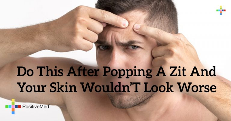 Do THIS After Popping a Zit and Your Skin Wouldn't Look Worse