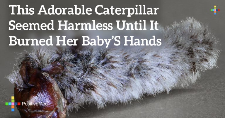 This Adorable Caterpillar Seemed Harmless Until It Burned Her Baby's Hands