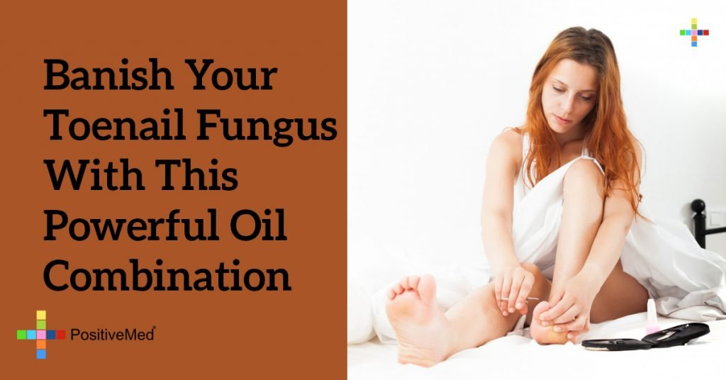 Banish Your Toenail Fungus With THIS Powerful Oil Combination