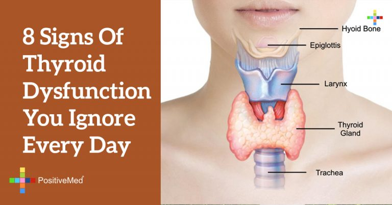 8 Signs of Thyroid Dysfunction You Ignore Every Day