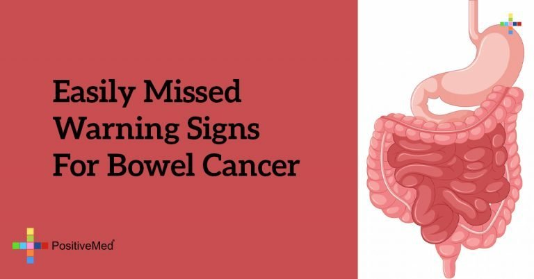 Easily Missed Warning Signs for Bowel Cancer