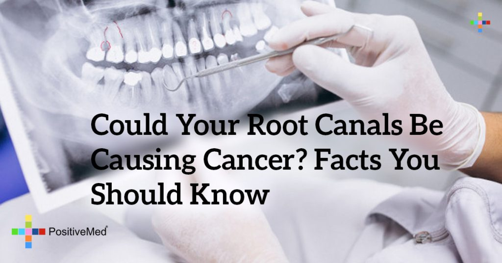 Could Your Root Canals Be Causing Cancer? Facts You Should Know