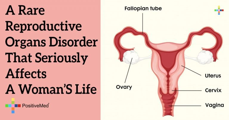 A Rare Reproductive Organs Disorder that Seriously Affects a Woman's Life