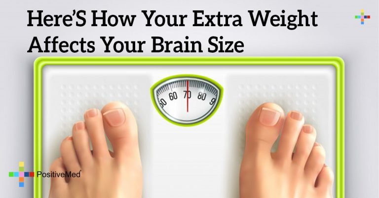 Here's How Your Extra Weight Affects Your Brain Size