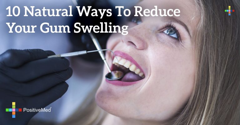 10 Natural Ways To Reduce Your Gum Swelling