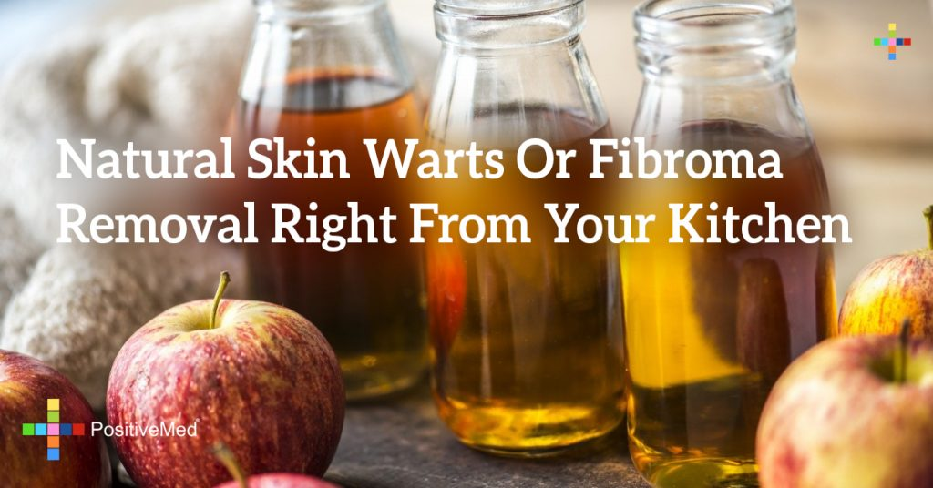 Natural Skin Warts Or Fibroma Removal Right From Your Kitchen