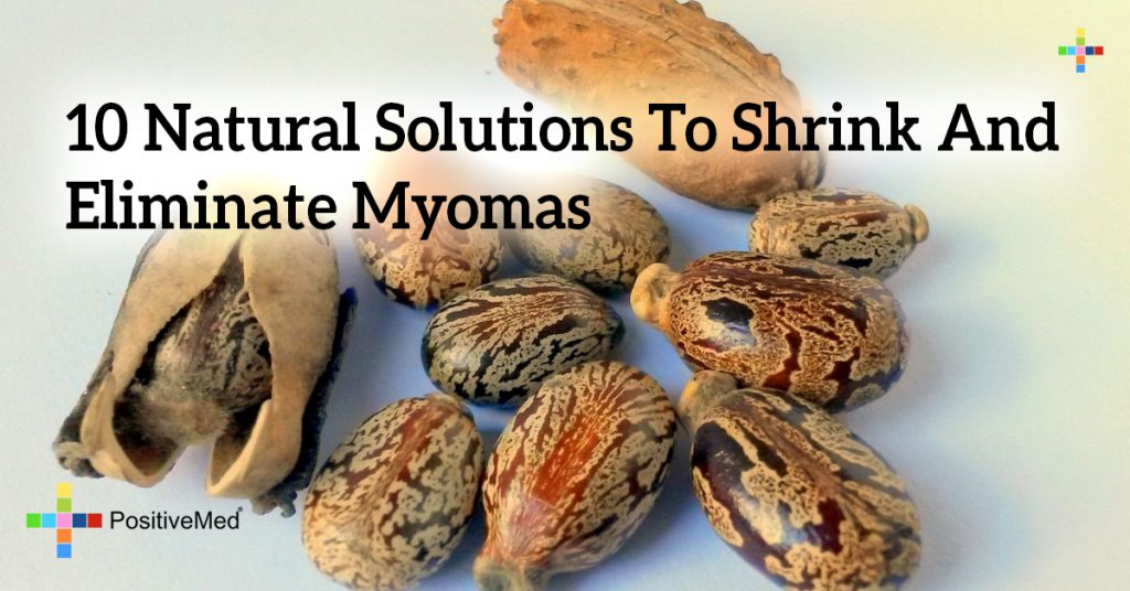 10 Natural Solutions To Shrink And Eliminate Myomas