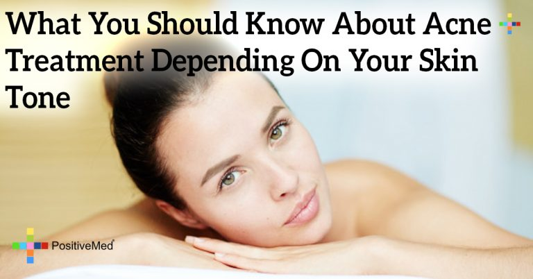 What You Should Know About Acne Treatment Depending On Your Skin Tone