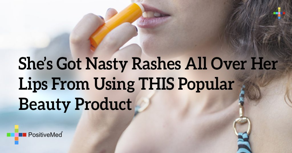 She's Got Nasty Rashes All Over Her Lips From Using THIS Popular Beauty Product